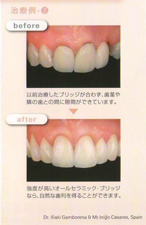 【Before】以前の治療したブリッジが合わず、歯茎や隣の歯との間に隙間ができています。 【After】強度の高いオールセラミックブリッジなら自然な歯列を得ることができます。