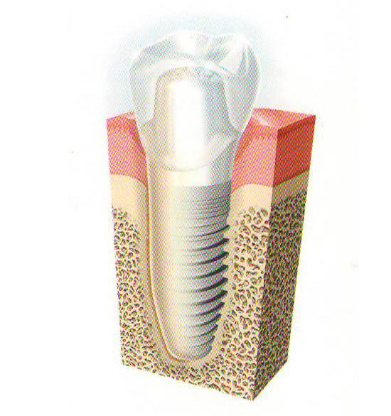 インプラント ひぐち歯科